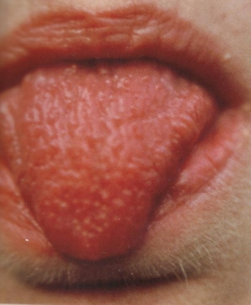 Zaklady Diagnostiky Podle Jazyka Alternativni Terapie